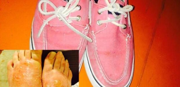 150 liraya Çin malı ayakkabı aldı ayakları yandı