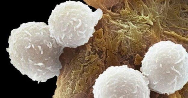 Kanser Tedavisinde Önemli Gelişme