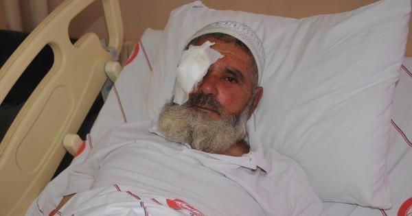 Arı Saldırısına Uğradı, Başından 133 İğne Çikarildi