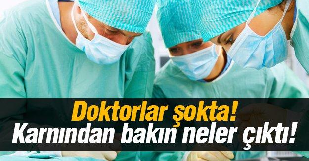 Doktorlar şokta! Karnından bakın neler çıktı!