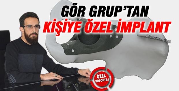 GÖR GRUP'TAN KİŞİYE ÖZEL İMPLANT