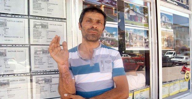 Sigara böreği patladı: 1 yaralı!
